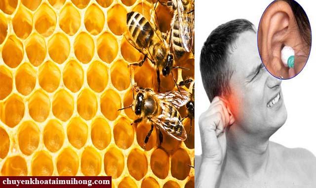 Sử dụng sáp ong chữa bệnh viêm tai giữa