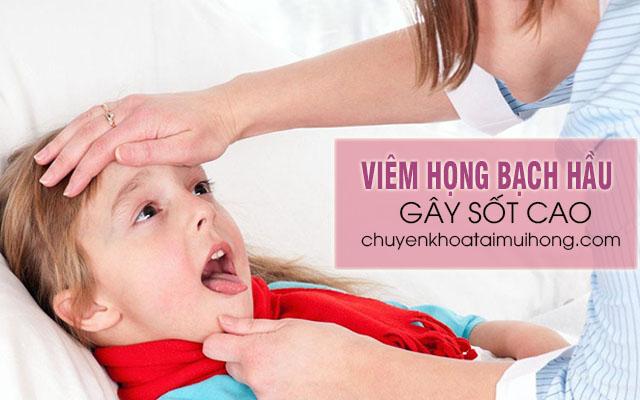 Bệnh viêm họng bạch hầu gây sốt cao