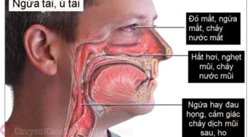 Triệu chứng viêm xoang dị ứng