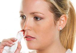 Viêm xoang hỉ mũi ra máu là dấu hiệu bệnh đang phát triển nặng