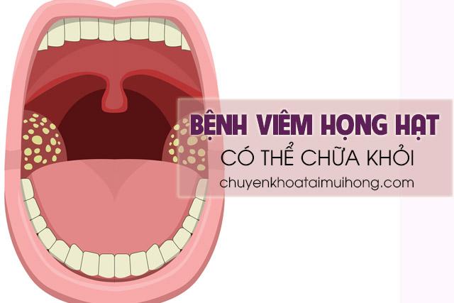 Bệnh viêm họng hạt có thể chữa khỏi