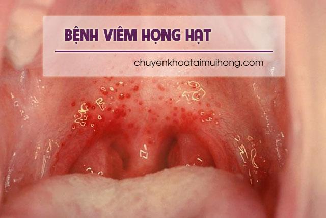Viêm họng hạt có chữa khỏi được không?