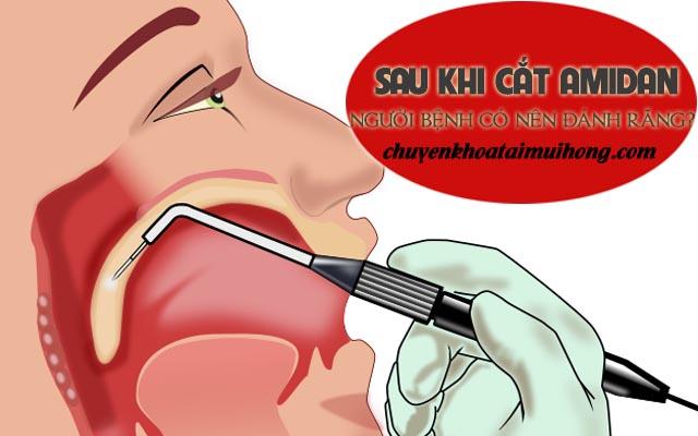 Sau khi cắt amidan người bệnh có nên đánh răng không?