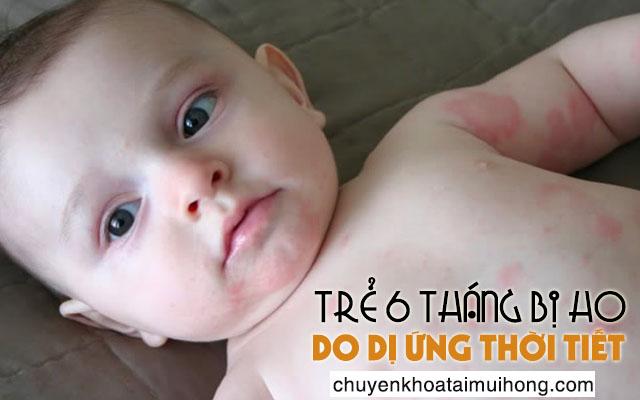 Trẻ 6 tháng tuổi bị ho do thời tiết thay đổi đột ngột