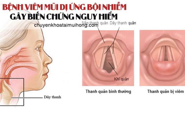 Viêm mũi dị ứng bội nhiễm gây biến chứng nguy hiểm