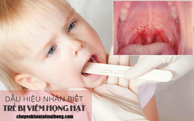 Dấu hiệu nhận biết bệnh viêm họng hạt ở trẻ