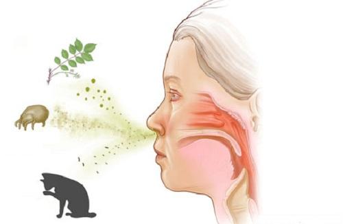 Bệnh viêm mũi dị ứng và viêm xoang hoàn toàn khác nhau