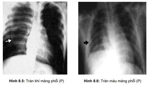 Viêm phế quản phổi gây tràn khí vào trong phổi