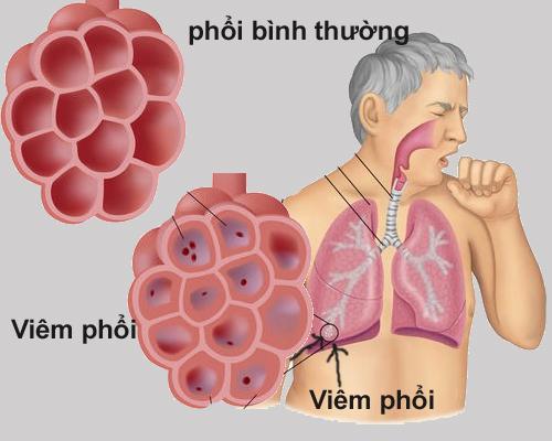 Viêm phổi là biến chứng của bệnh viêm phế quản