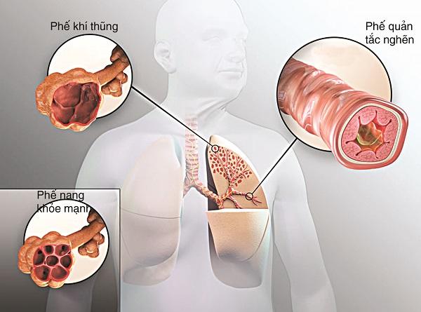 Viêm phế quản mãn tính là biến chứng của bệnh viêm phế quản