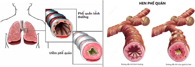 Bệnh hen phế quản mãn tính là biến chứng của bệnh viêm phế quản