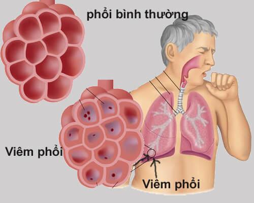 Viêm phổi là biến chứng của bệnh viêm phế quản dạng hen