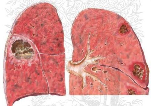 Áp xe phổi là biến chứng của bệnh viêm phế quản dạng hen