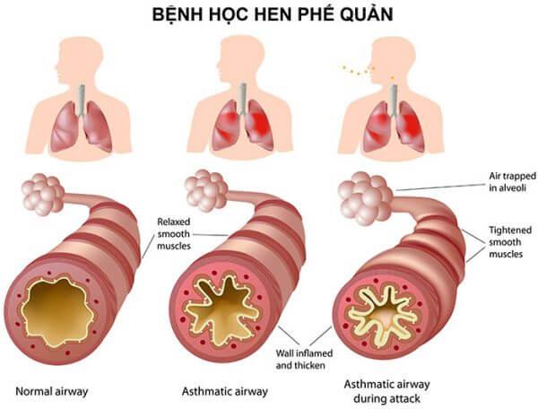 Viêm phế quản dạng hen có thể gây biến chứng thành bệnh hen phế quản