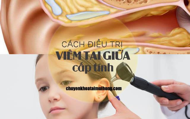 Cách điều trị viêm tai giữa cấp tính