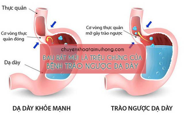 Đau rát mũi là triệu chứng của bệnh trào ngược dạ dày thực quản