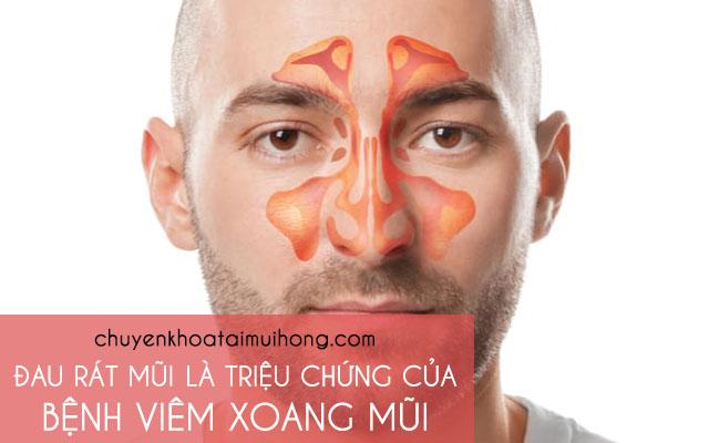 Đau rát mũi là triệu chứng của bệnh viêm xoang mũi