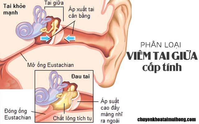 Phân loạibệnh viêm tai giữa cấp tính
