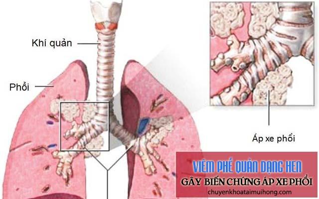 Viêm phế quản dạng hen gây biến chứng áp xe phổi