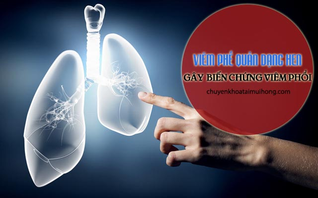 Viêm phổi dạng hen gây biến chứng viêm phổi