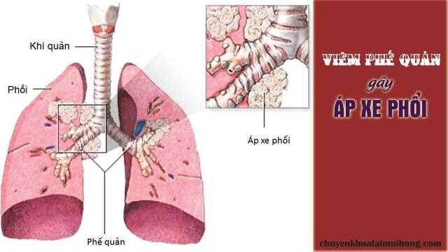 Viêm phế quản gây áp xe phổi