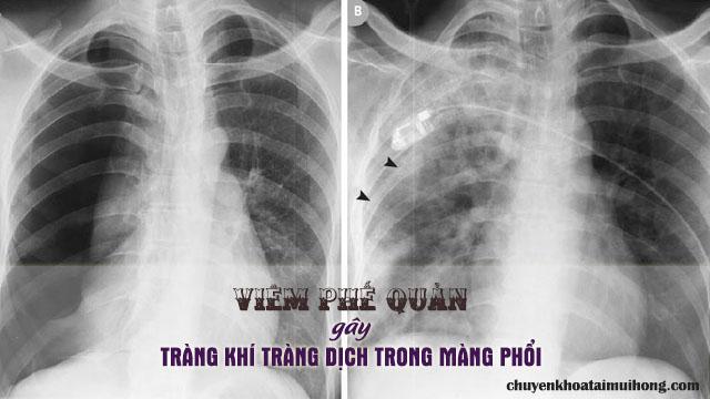 Viêm phế quản gây tràn khí tràng dịch vào trong màng phổi