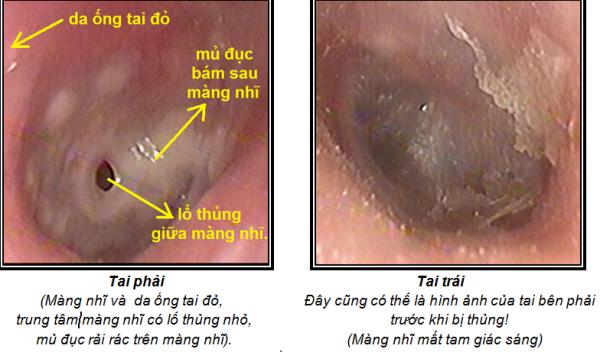 Viêm tai giữa cấp tính gây ra tình trạng thủng màng não