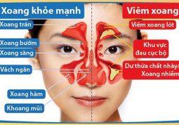 Bệnh viêm đa xoang gây nhiều triệu chứng khó chịu cho người bệnh