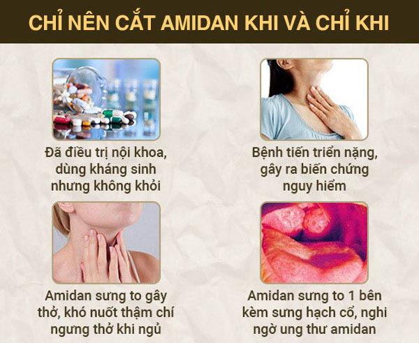 Những đối tượng được chỉ định cắt viêm amidan
