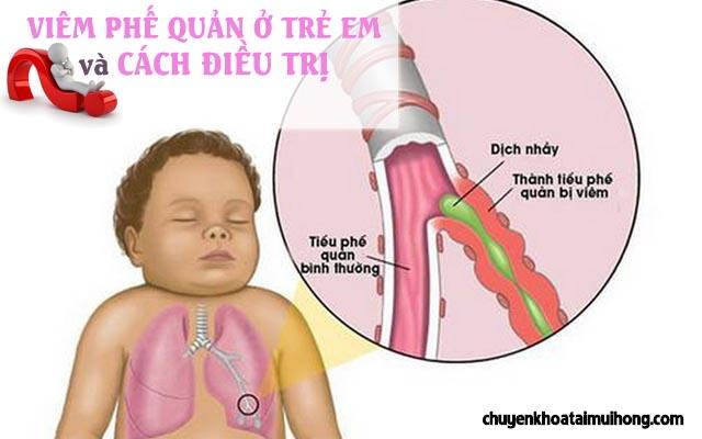 Viêm phế quản ở trẻ em và cách điều trị bệnh