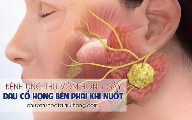 Đau họng bên phải khi nuốt là triệu chứng của bệnh ung thư vòm họng