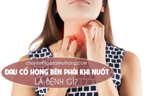 Đau cổ họng bên phải khi nuốt là bệnh gì?