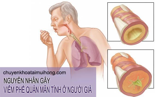 Nguyên nhân gây viêm phế quản mãn tính ở người già