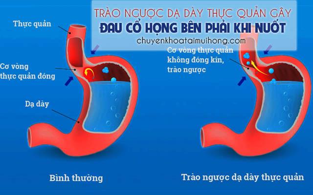 Trào ngược dạ dày thực quản gây đau họng bên phải khi nuốt
