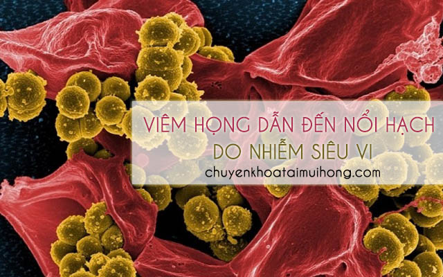 Viêm họng gây nổi hạch do cơ thể người bệnh bị nhiễm siêu vi