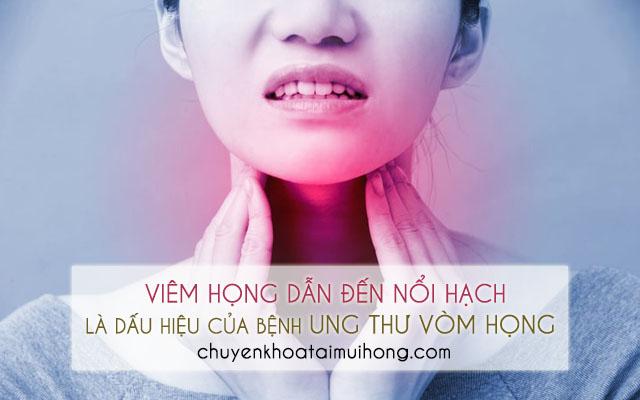 Viêm họng nổi hạch là dấu hiệu của bệnh ung thư vòm họng