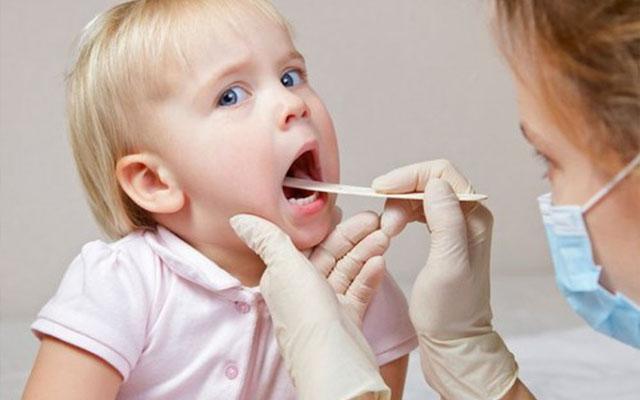 triệu chứng bệnh viêm họng ở trẻ