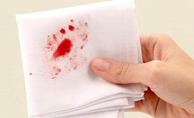 Khạc ra đờm có máu dấu hiệu cảnh báo bệnh nguy hiểm