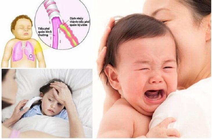 Trẻ bị viêm phế quản có biểu hiện ho, sốt liên tục, cổ họng đau rát