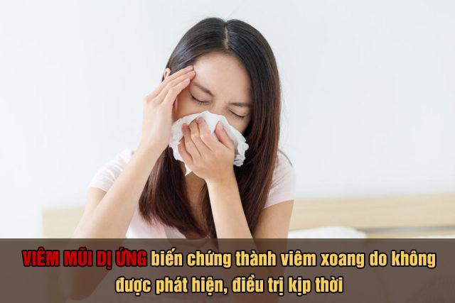 Viêm xoang biến chứng nguy hiểm của bệnh viêm mũi dị ứng